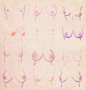Mamografía pechos